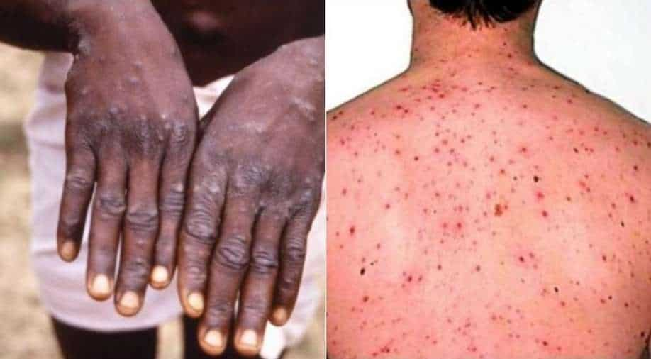 Monkeypox outbreak in the UK: Two treated for rare viral infection in North  Wales, World News | wionews.com